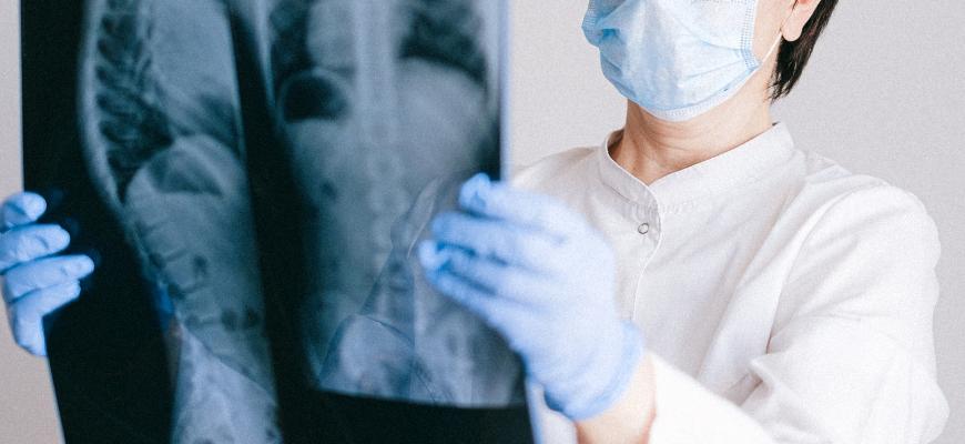 Especialistas questionam atrasos na aprovação de novos tratamentos para fibrose quística - News Farma